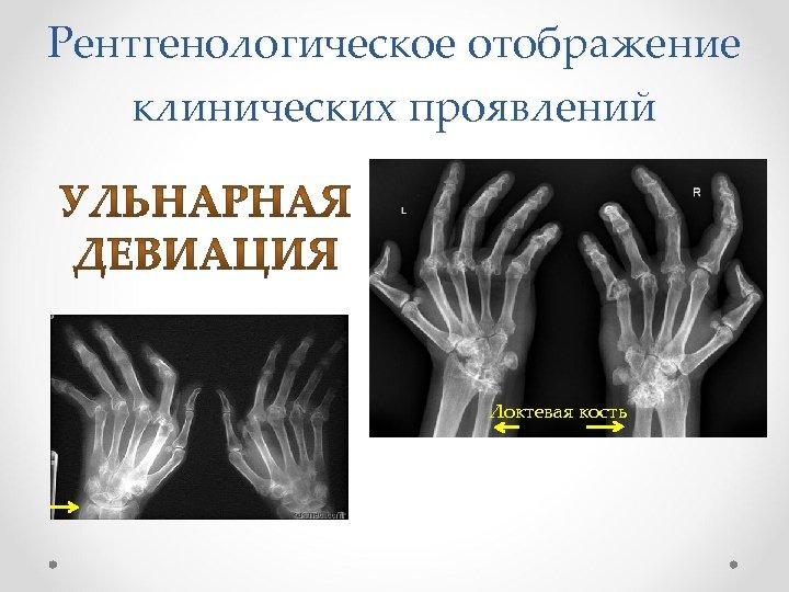 Рентгенологическое отображение клинических проявлений Локтевая кость