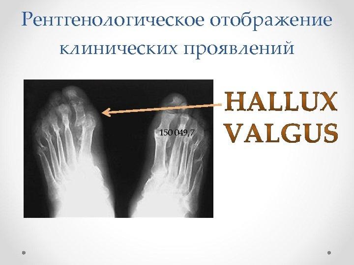 Рентгенологическое отображение клинических проявлений 150 049, 7