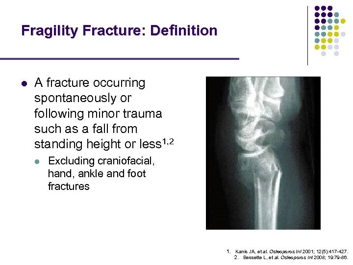 Fragility Fracture: Definition l A fracture occurring spontaneously or following minor trauma such as