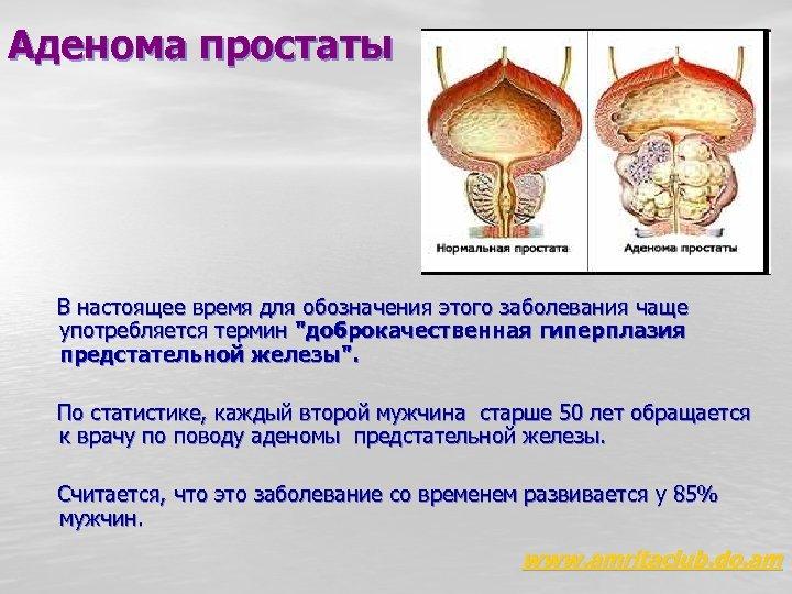 Аденома простаты В настоящее время для обозначения этого заболевания чаще употребляется термин