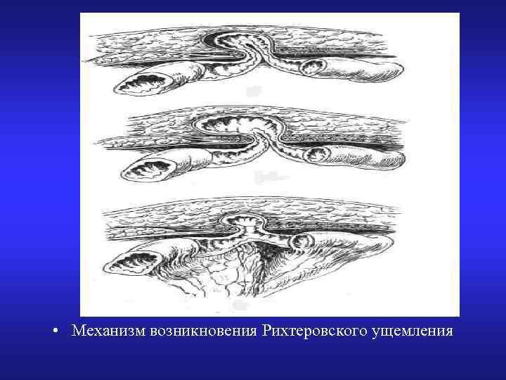 • Механизм возникновения Рихтеровского ущемления