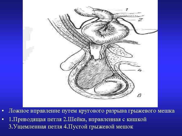 • Ложное вправление путем кругового разрыва грыжевого мешка • 1. Приводящая петля 2.
