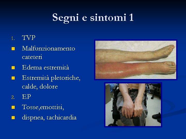 Segni e sintomi 1 1. n n n 2. n n TVP Malfunzionamento cateteri
