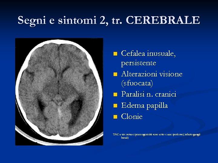 Segni e sintomi 2, tr. CEREBRALE n n n Cefalea inusuale, persistente Alterazioni visione