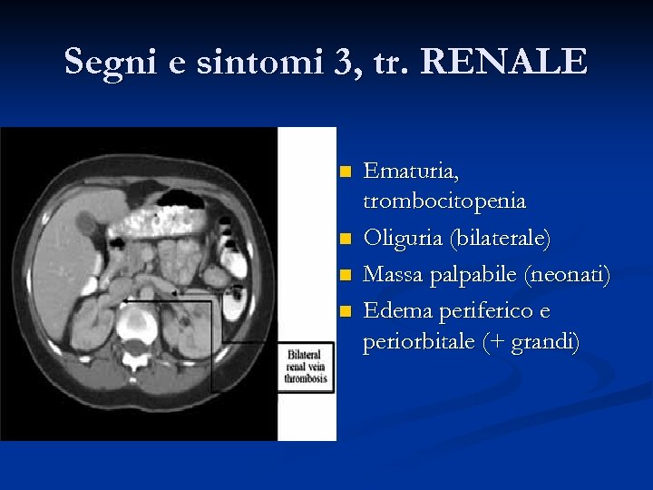 Segni e sintomi 3, tr. RENALE n n Ematuria, trombocitopenia Oliguria (bilaterale) Massa palpabile