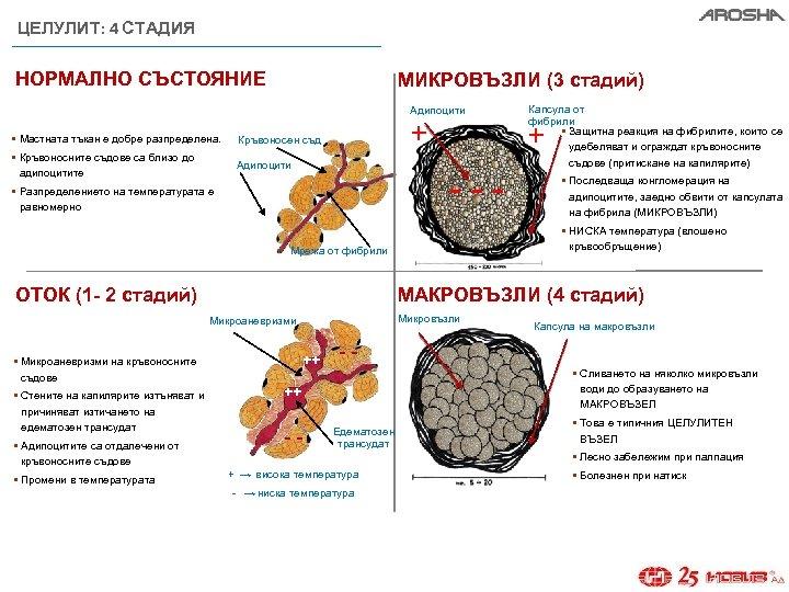 ЦЕЛУЛИТ: 4 СТАДИЯ НОРМАЛНО СЪСТОЯНИЕ МИКРОВЪЗЛИ (3 стадий) Адипоцити § Мастната тъкан е добре