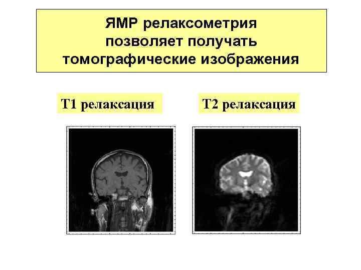 ЯМР релаксометрия позволяет получать томографические изображения Т 1 релаксация Т 2 релаксация