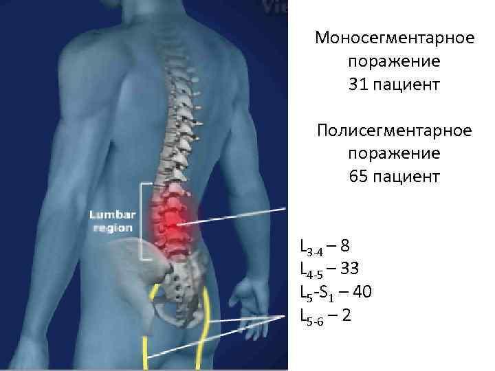 Моносегментарное поражение 31 пациент Полисегментарное поражение 65 пациент L 3 -4 – 8 L