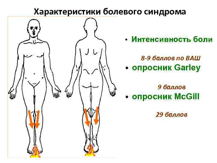 Характеристики болевого синдрома • Интенсивность боли 8 -9 баллов по ВАШ • опросник Garley