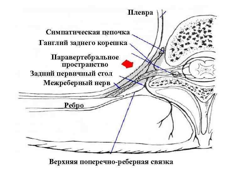 Плевра Симпатическая цепочка Ганглий заднего корешка Паравертебральное пространство Задний первичный стол Межреберный нерв Ребро