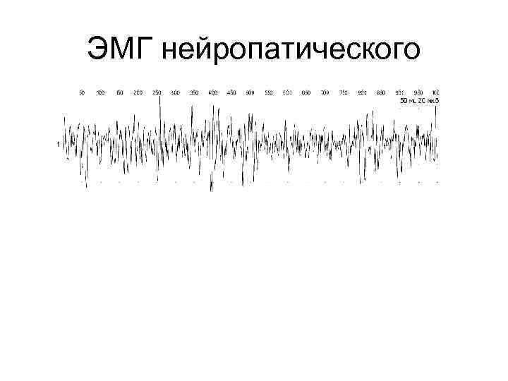 ЭМГ нейропатического