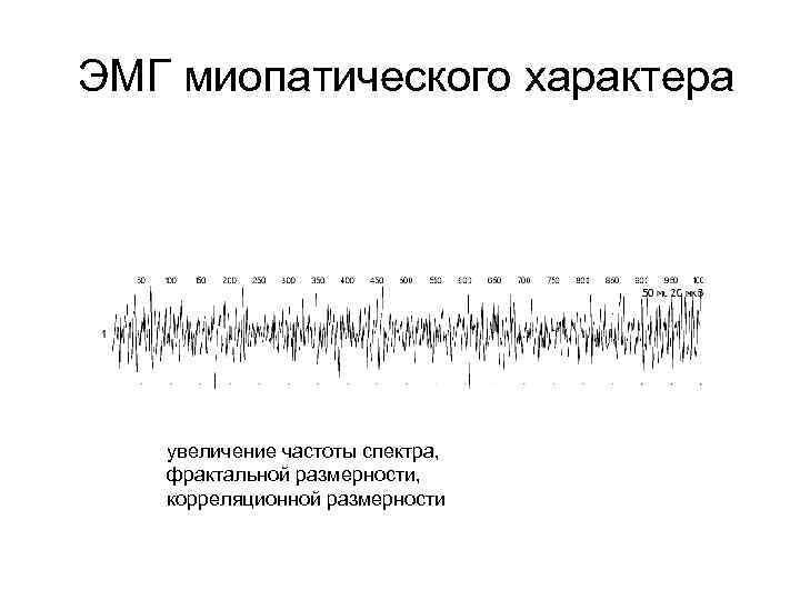 ЭМГ миопатического характера увеличение частоты спектра, фрактальной размерности, корреляционной размерности