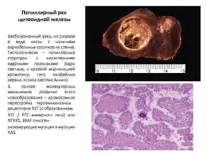 Чернобыльская авария уже через 5 лет дала лавинный рост рака щитовидной железы в облученной детской и подростковой популяции и.