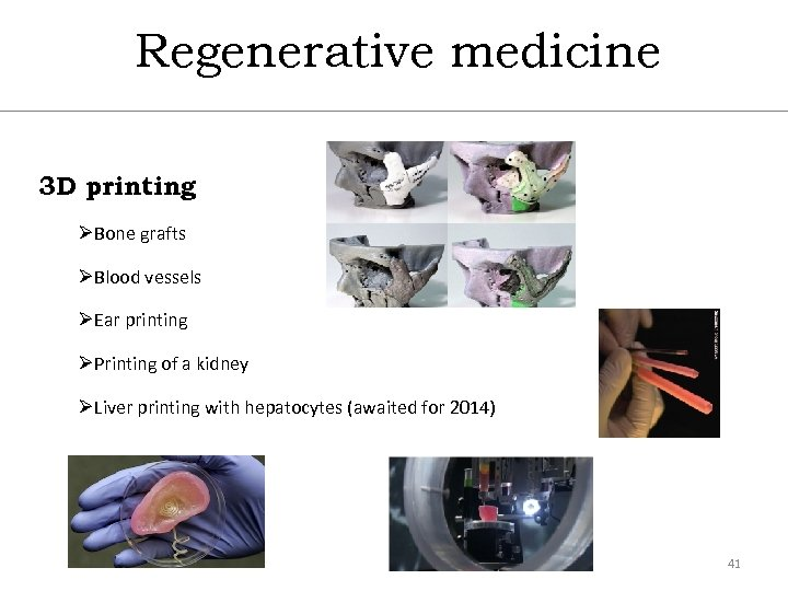 Regenerative medicine 3 D printing ØBone grafts ØBlood vessels ØEar printing ØPrinting of a