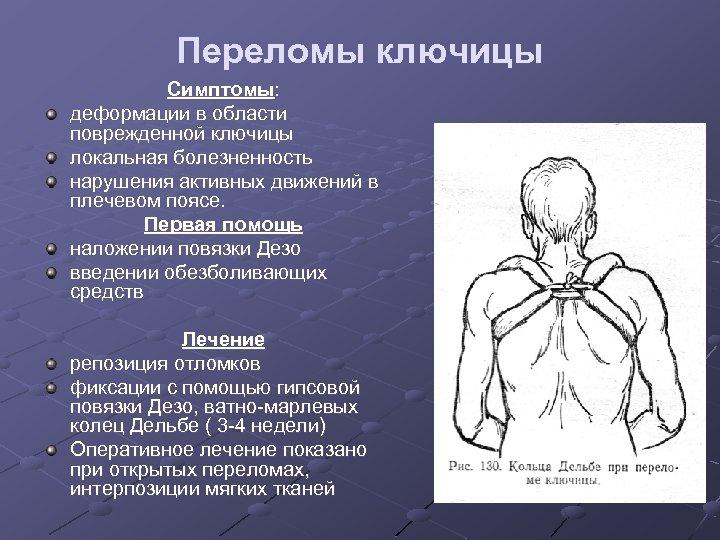 Переломы ключицы Симптомы: деформации в области поврежденной ключицы локальная болезненность нарушения активных движений в