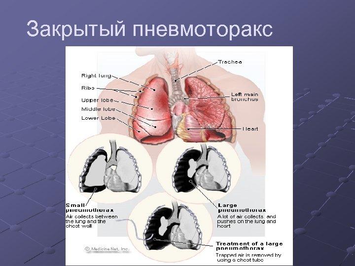 Закрытый пневмоторакс