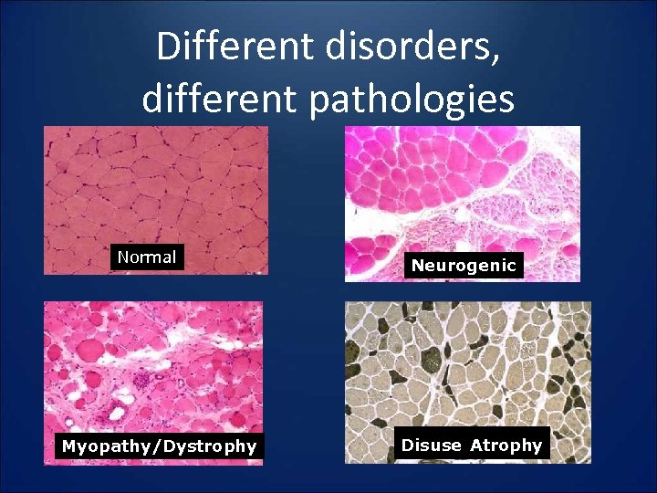 Different disorders, different pathologies Normal Myopathy/Dystrophy Neurogenic Disuse Atrophy