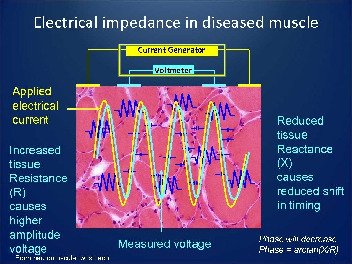 Electrical impedance in diseased muscle Current Generator Voltmeter Applied electrical current Increased tissue Resistance
