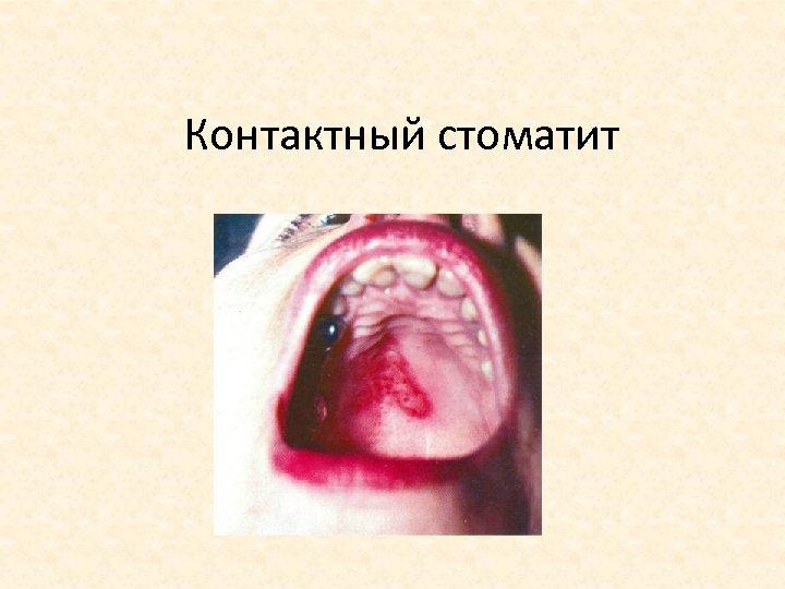 Контактный стоматит