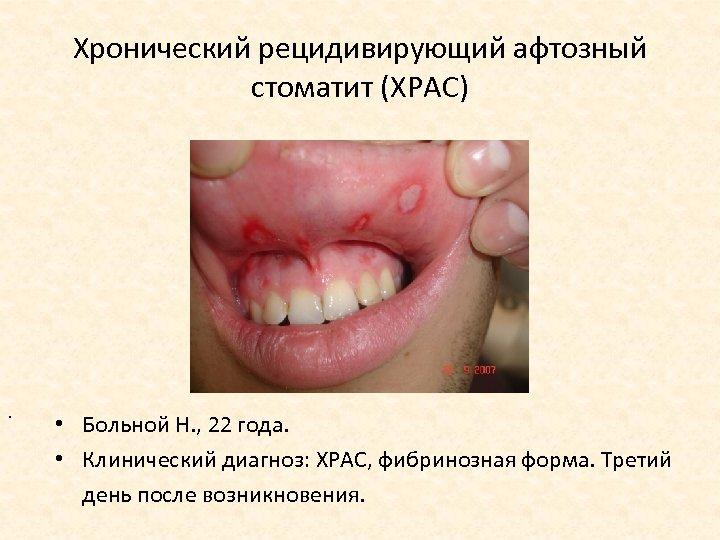 Хронический рецидивирующий афтозный стоматит (ХРАС) . • Больной Н. , 22 года. • Клинический