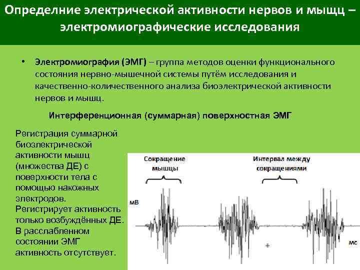Определние электрической активности нервов и мыщц – электромиографические исследования • Электромиография (ЭМГ) – группа