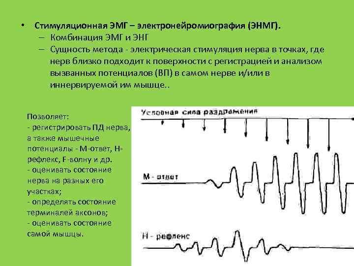 • Стимуляционная ЭМГ – электронейромиография (ЭНМГ). – Комбинация ЭМГ и ЭНГ – Сущность