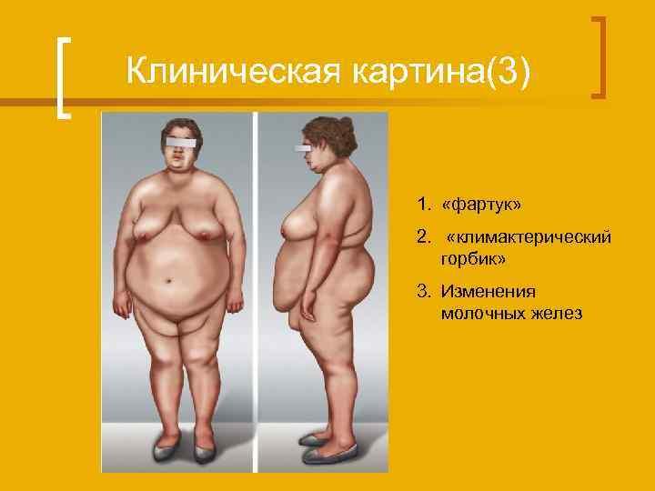 Клиническая картина(3) 1. «фартук» 2. «климактерический горбик» 3. Изменения молочных желез