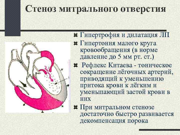 Стеноз митрального отверстия Гипертрофия и дилатация ЛП Гипертония малого круга кровообращения (в норме давление