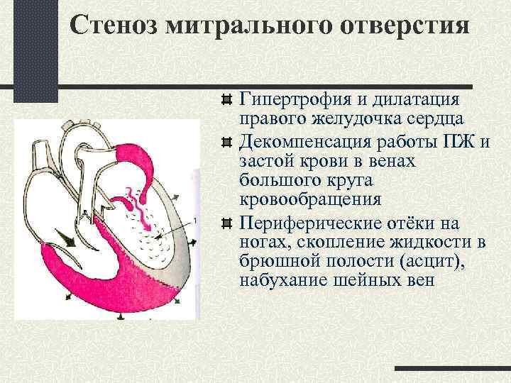 Стеноз митрального отверстия Гипертрофия и дилатация правого желудочка сердца Декомпенсация работы ПЖ и застой