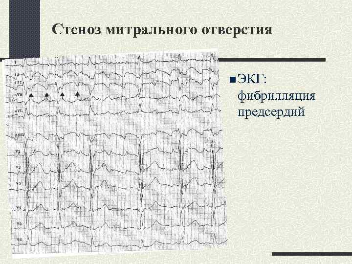 Стеноз митрального отверстия n ЭКГ: фибрилляция предсердий