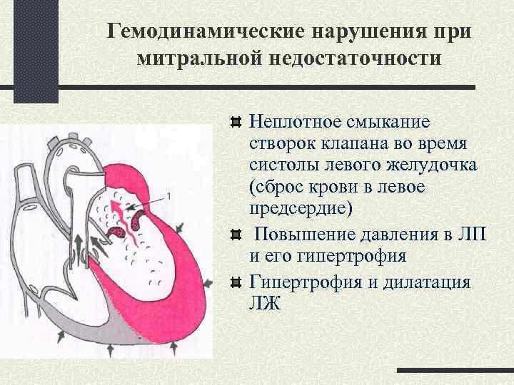 Гемодинамические нарушения при митральной недостаточности Неплотное смыкание створок клапана во время систолы левого желудочка