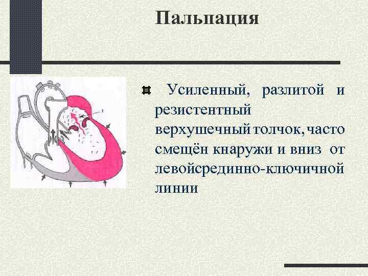 Пальпация Усиленный, разлитой и резистентный верхушечный толчок, часто смещён кнаружи и вниз от левойсрединно-ключичной