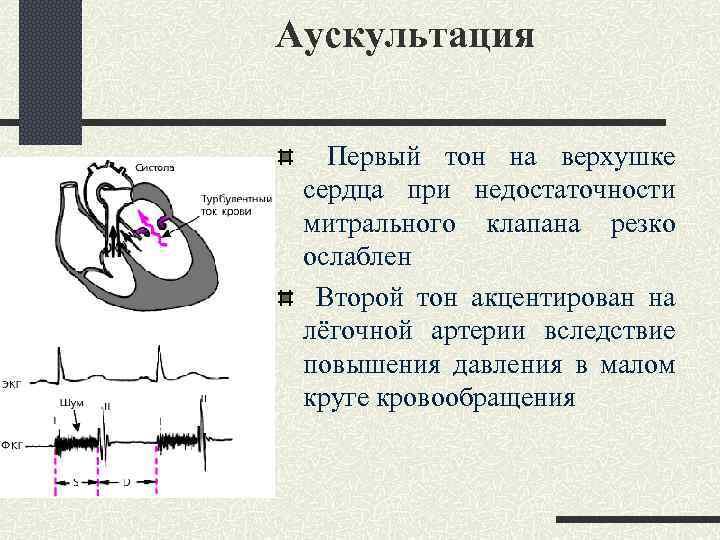 Аускультация Первый тон на верхушке сердца при недостаточности митрального клапана резко ослаблен Второй тон