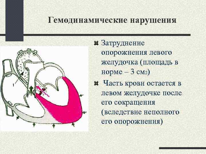 Гемодинамические нарушения Затруднение опорожнения левого желудочка (площадь в норме – 3 см 2) Часть