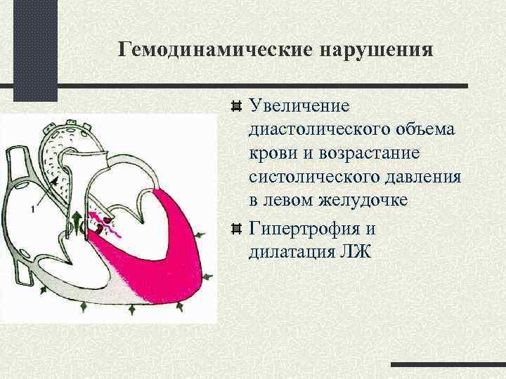 Гемодинамические нарушения Увеличение диастолического объема крови и возрастание систолического давления в левом желудочке Гипертрофия