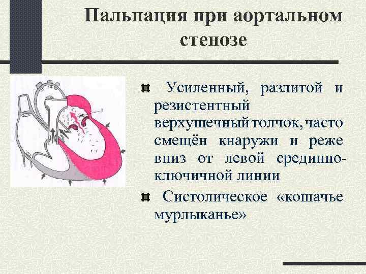 Пальпация при аортальном стенозе Усиленный, разлитой и резистентный верхушечный толчок, часто смещён кнаружи и