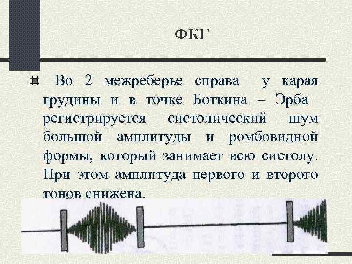 ФКГ Во 2 межреберье справа у карая грудины и в точке Боткина – Эрба