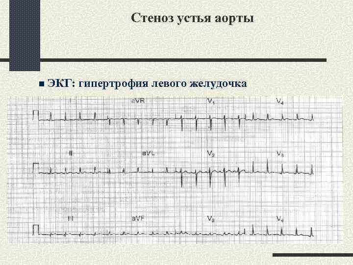 Стеноз устья аорты n ЭКГ: гипертрофия левого желудочка