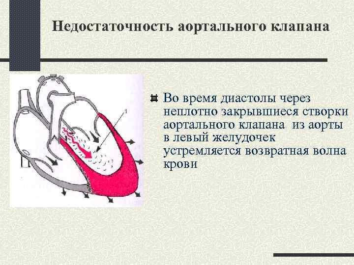 Недостаточность аортального клапана Во время диастолы через неплотно закрывшиеся створки аортального клапана из аорты