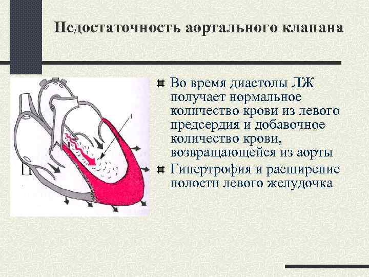 Недостаточность аортального клапана Во время диастолы ЛЖ получает нормальное количество крови из левого предсердия