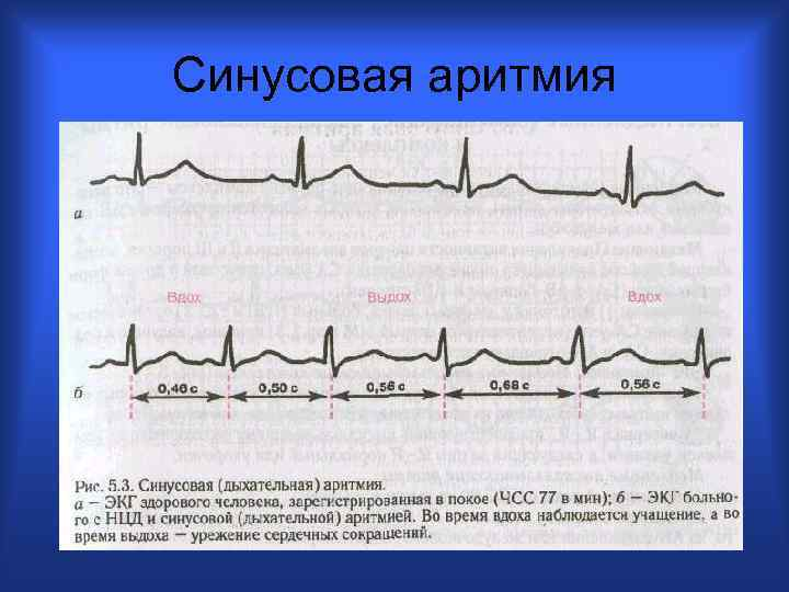 Картинки синусовой аритмии на экг