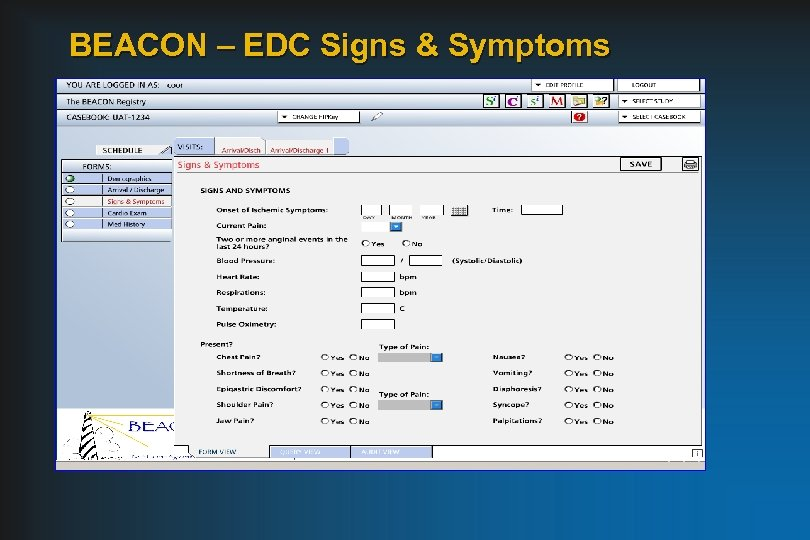 BEACON – EDC Signs & Symptoms