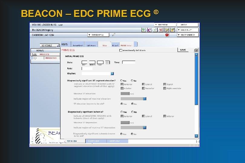 BEACON – EDC PRIME ECG ®