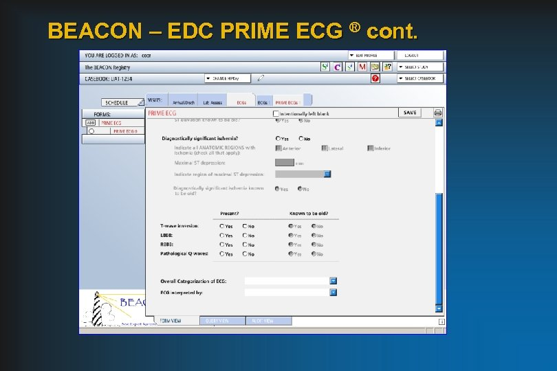 BEACON – EDC PRIME ECG ® cont.