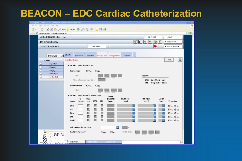 BEACON – EDC Cardiac Catheterization