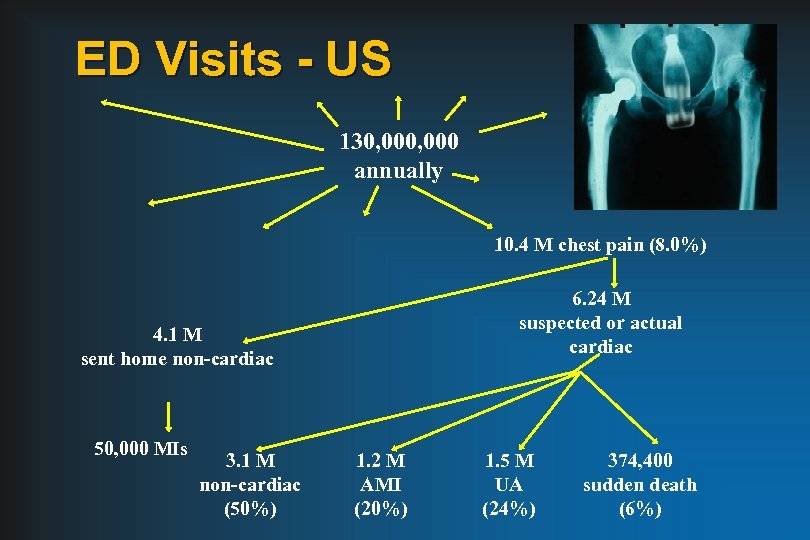 ED Visits - US 130, 000 annually 10. 4 M chest pain (8. 0%)