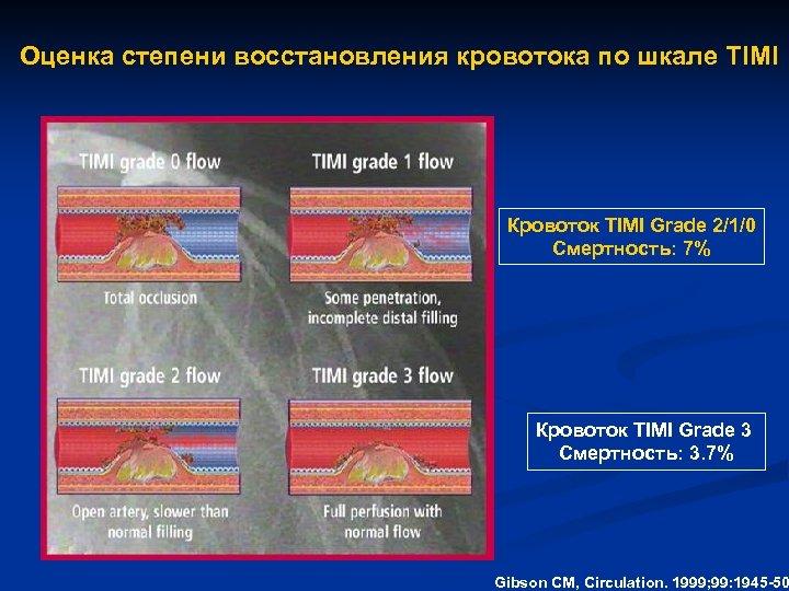 Оценка степени восстановления кровотока по шкале TIMI Кровоток TIMI Grade 2/1/0 Смертность: 7% Кровоток