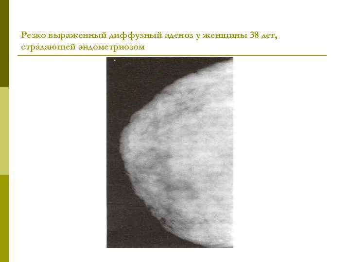 Резко выраженный диффузный аденоз у женщины 38 лет, страдающей эндометриозом