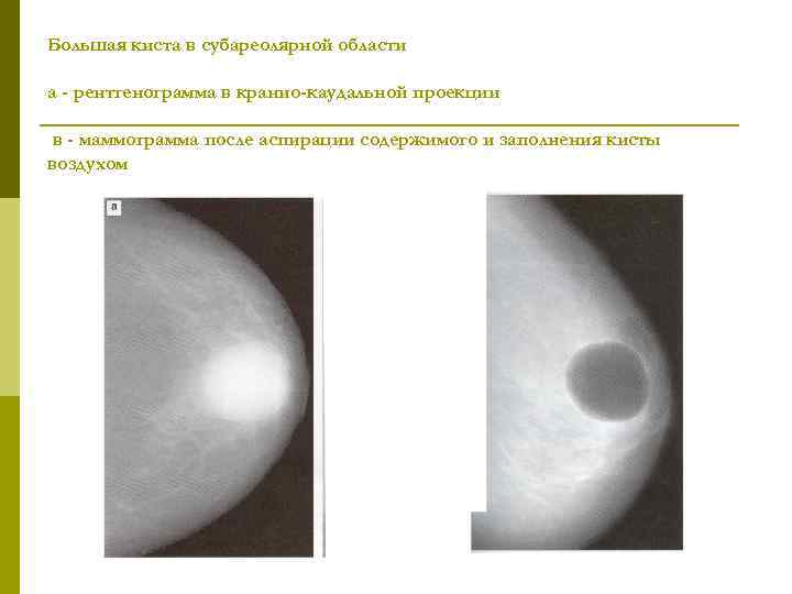 Большая киста в субареолярной области а - рентгенограмма в кранио-каудальной проекции в - маммограмма