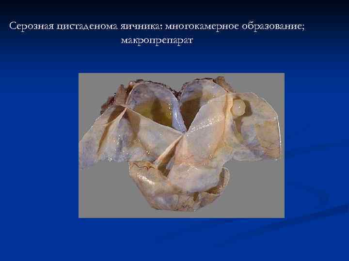 Серозная цистаденома яичника: многокамерное образование; макропрепарат